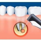 Лечение кист и гранулем в стоматологической клинике Ладент